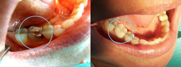 Problem: Large failing amalgam on tooth #30 Procedure: Same day crown on tooth #30