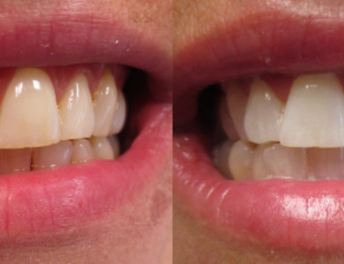 Zoom Teeth Whitening – March 1st, 2018