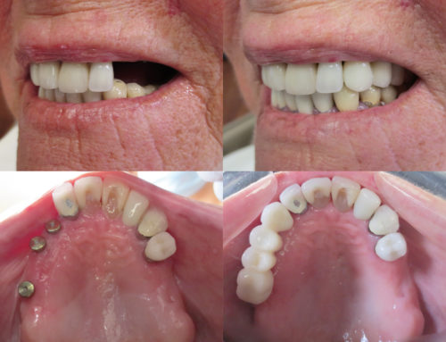 4-tooth bridge on 3 implants