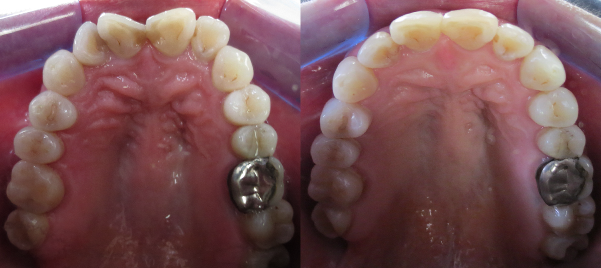 Before and After Invisalign in Chester, NJ