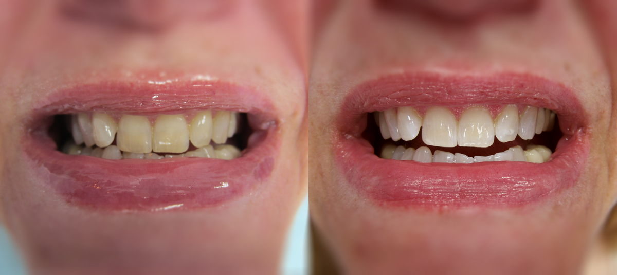 Teeth whitening in Chester, NJ
