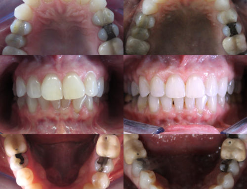 Invisalign – 52 year old female with crowding