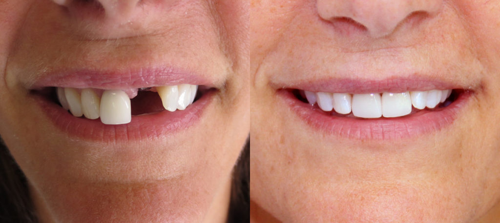 Two front teeth: extraction and implant, replacement of crown