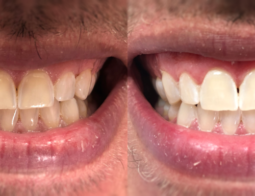Teeth Whitening – September 14th, 2020