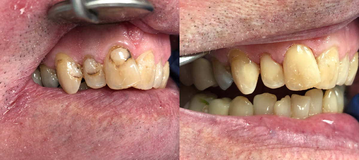 Old fillings with decay and stain replaced with composite
